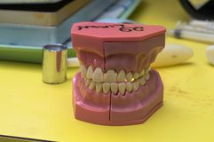 O molde dental abandonou o escritório dos dentistas fotos de stock royalty free