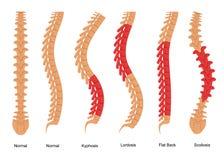 O osso da osteoporose datilografa o cartaz do cartão do conceito de Infographics Vetor ilustração stock