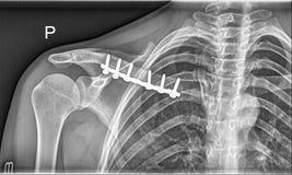 O osso quebrado da clavícula, empurra o raio X médico imagens de stock royalty free