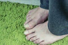 O pé desencapado do ancião fotografia de stock royalty free