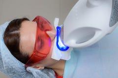 O paciente submete-se a um procedimento para os dentes que clarea com uma lâmpada ultravioleta foto de stock
