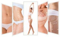 O plano da remoção das celulites Marcações brancas no corpo da jovem mulher fotos de stock royalty free