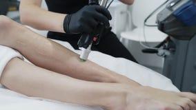 O procedimento de remoção do cabelo do laser na clínica da beleza, fecha-se acima dos pés da mulher durante o epilation, moviment filme