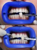 O procedimento para comparar as máscaras da cor dos dentes antes e depois do descoramento Fotos de Stock Royalty Free