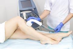 O processo de depilação do laser dos membros fêmeas fotos de stock royalty free