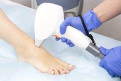 O processo de depilação do laser dos membros fêmeas fotografia de stock