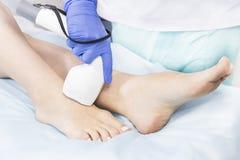 O processo de depilação do laser dos membros fêmeas foto de stock