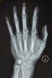 O raio X da mão esquerda Fotografia de Stock