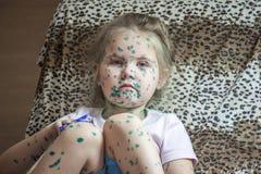 O retrato da menina bonito 3-4-5 anos velha com olhos tristes, com varicela, espinhas untou com preparações medicinais verdes Fotos de Stock Royalty Free