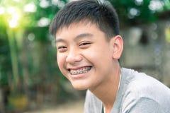 O sorriso bonito do menino considerável com dentes apoia dental Fotos de Stock Royalty Free