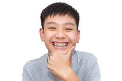 O sorriso bonito do menino considerável com dentes apoia dental Fotografia de Stock Royalty Free