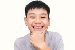 O sorriso bonito do menino considerável com dentes apoia dental foto de stock