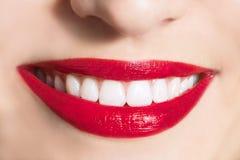 O sorriso neve-branco das mulheres fotografia de stock royalty free