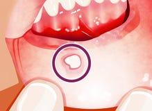 O stomatitis aftoso é uma condição comum caracterizada pela formação repetida de úlceras benignas e não contagiosas da boca ilustração royalty free