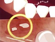 O stomatitis aftoso é uma condição comum caracterizada pela formação repetida de úlceras benignas e não contagiosas da boca ilustração stock