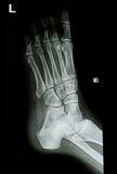O tornozelo radiografa a imagem Imagem de Stock Royalty Free