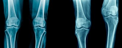OA knee and deformity knee. Collection of knee joint, knee joint pain x-ray set, high qaulity knee joint and tibia, femur bone royalty free stock photography