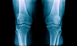 OA knee x-ray image. X-ray OA knee, OA knee x-ray image royalty free stock photo