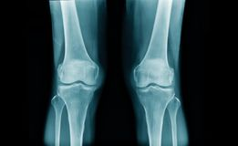 OA knee x-ray image in blue tone. X-ray OA knee in blue tone on black background stock photo