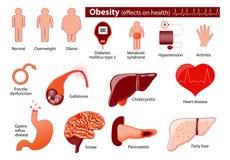 Obésité et infographic de poids excessif Photos stock