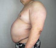 Obésité - homme obèse Images stock