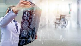 oberer Teil des menschlichen Körpers, Höhenqualitäts-Röntgenstrahlbild von menschlichem herein lizenzfreies stockfoto