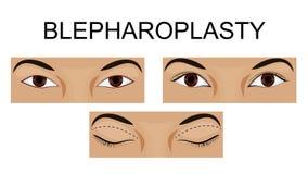 Oberes Augenlid blepharoplasty lizenzfreie abbildung