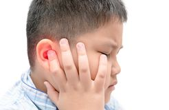 Obese fat boy touching his painful ear isolated. On white background, health care concept stock image