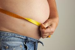 Obese fat man. Man is holding his too fat tummy. Obesity health hazard. Royalty Free Stock Photo