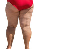Obese female legs. Overweight person isolated. Problem caused by poor diet. Excessive load on heart Royalty Free Stock Photography