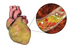 Obese heart, illustration. Obese heart and closeup view of coronary artery with cholesterol plaque, 3D illustration. Conceptual image for cardiovascular diseases Royalty Free Stock Image