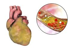 Obese heart, illustration. Obese heart and closeup view of coronary artery with cholesterol plaque, 3D illustration. Conceptual image for cardiovascular diseases Royalty Free Stock Photo