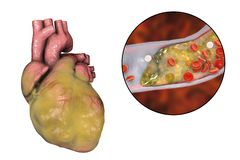 Obese heart, illustration. Obese heart and closeup view of coronary artery with cholesterol plaque, 3D illustration. Conceptual image for cardiovascular diseases Royalty Free Stock Images