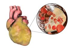 Obese heart, illustration. Obese heart and closeup view of coronary artery with cholesterol plaque, 3D illustration. Conceptual image for cardiovascular diseases Stock Image