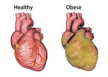 Obese heart, illustration. Healthy and obese heart isolated on white background, 3D illustration Royalty Free Stock Photography