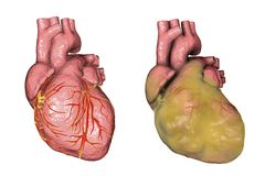 Obese heart, illustration. Healthy and obese heart with left ventricular hypertrophy isolated on white background, 3D illustration Royalty Free Stock Image