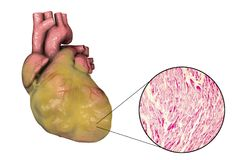 Obese heart, illustration. Obese heart with left ventricular hypertrophy, 3D illustration and micrograph Stock Photography