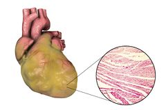 Obese heart, illustration. Obese heart with left ventricular hypertrophy, 3D illustration and micrograph Stock Image