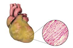 Obese heart, illustration. Obese heart with left ventricular hypertrophy, 3D illustration and micrograph Stock Images