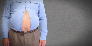 Obese man abdomen. Obesity and weight loss Royalty Free Stock Photos