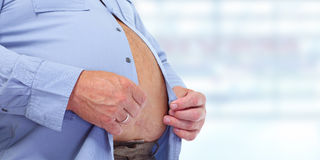 Obese man abdomen. Obesity and weight loss Royalty Free Stock Photo