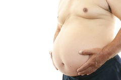 Obese patient Royalty Free Stock Images