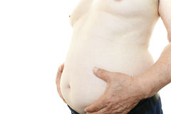 Obese patient Stock Photo