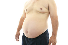 Obese patient Royalty Free Stock Photos