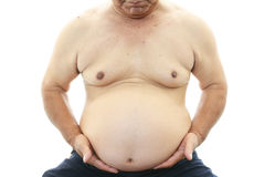 Obese patient Stock Photos