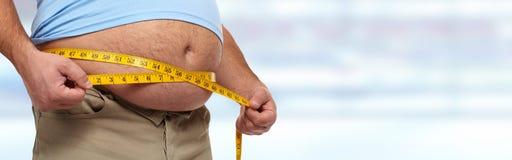 obesidad foto de archivo
