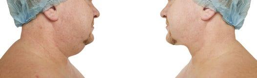 Obesidad plástica de la corrección masculina de la barbilla doble que aprieta antes y después de procedimientos imagen de archivo
