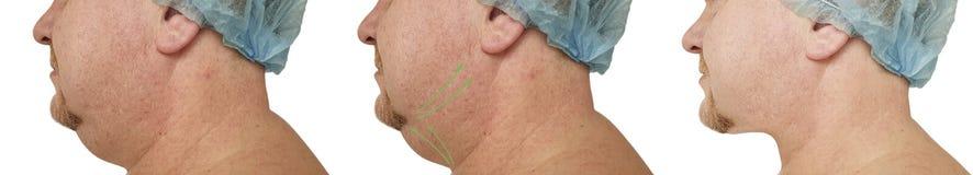 Obesidad plástica del retiro de la corrección masculina de la barbilla doble que aprieta antes y después de procedimientos imágenes de archivo libres de regalías