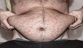 Obesidad - vientre gordo Fotografía de archivo libre de regalías