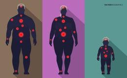 Obesidade da família, pontos da dor, vetor Imagem de Stock